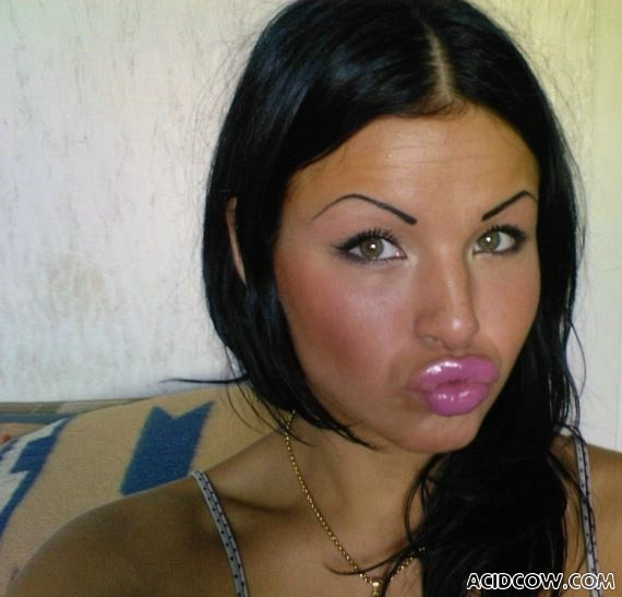 Girls With Silicone Lips (65 pics)