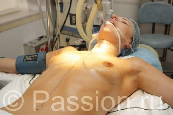 Amazing photos of breast increasing operation...