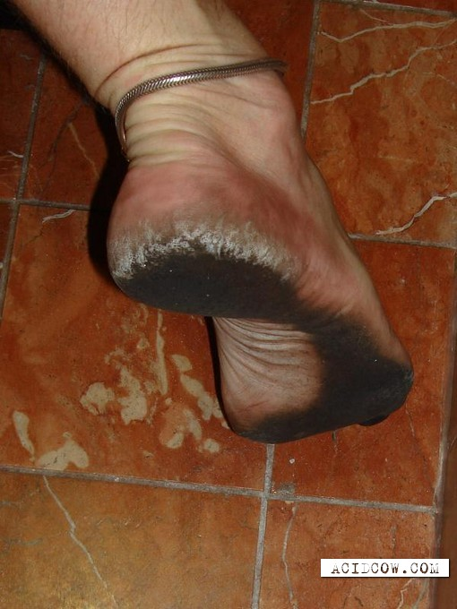 The person, who never wears shoes (22 pics)