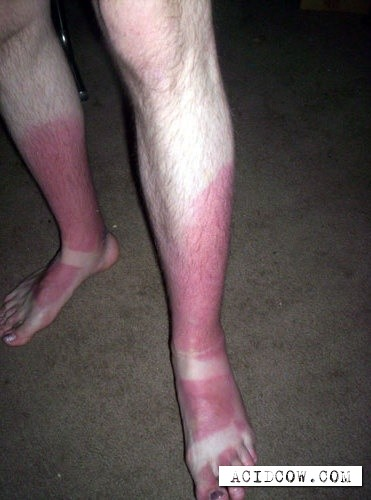 Cautiously, the burn is possible! (20 pics)