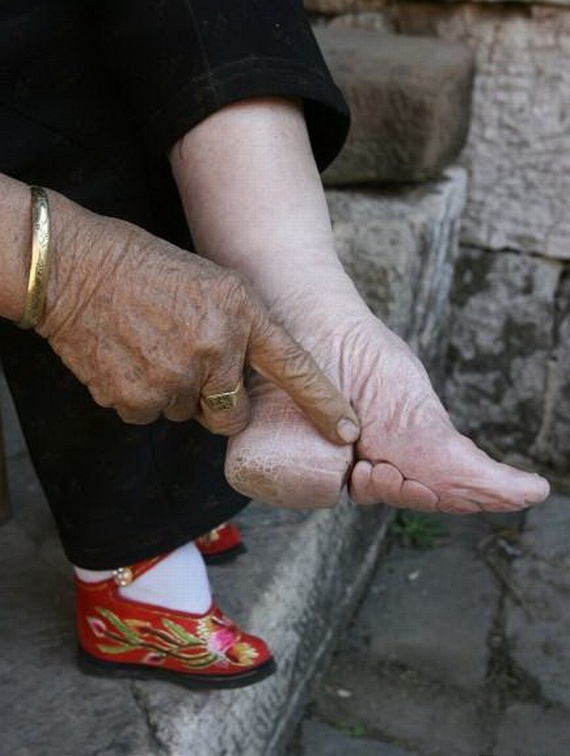 Chinese Foot Binding: What's Your Opinion?