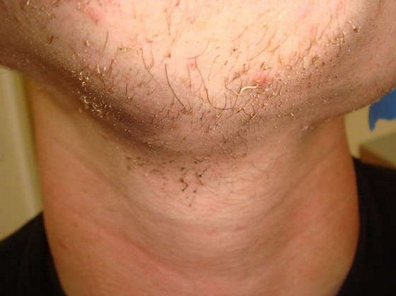 How To Fire Shave Like A Man (23 pics)