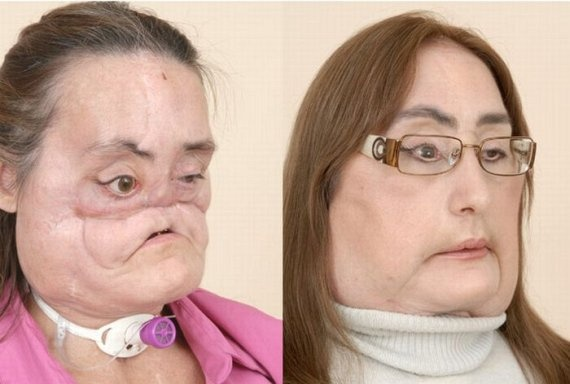 Face Transplant Unveiled After Shotgun Blast