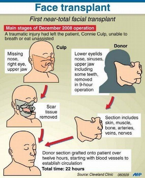 Face Transplant Unveiled After Shotgun Blast