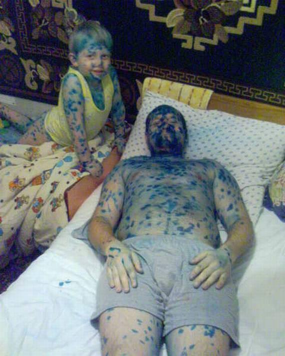 Russian Chickenpox (17 pics)