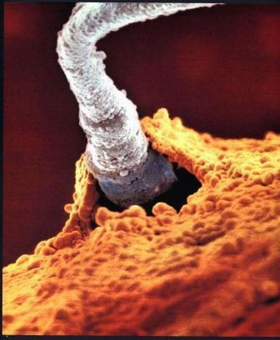 pochemu-spermatozoidi-ne-vsplivayut