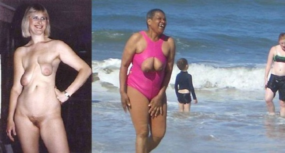 Breast can be different... (14 pics)