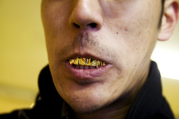Bling teeth (52 pics)