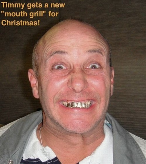 Bling teeth (52 pics)
