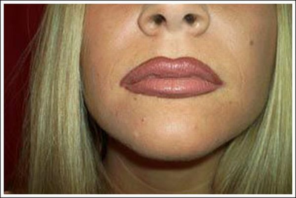 How to enlarge your lips (10 pics)
