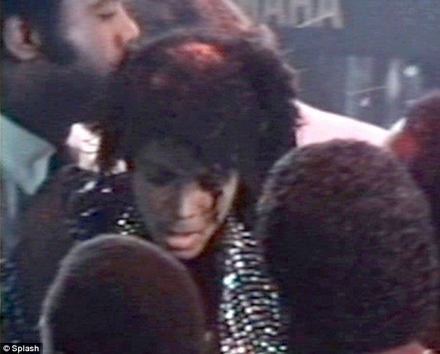 Michael Jackson's hair on fire (12 pics)