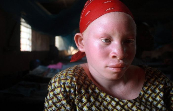 Albinos in Africa (8 pics)