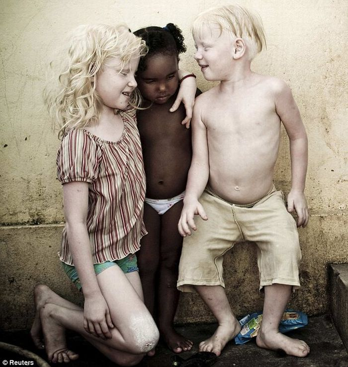 Rare occurrence: albino children in black Brazilian family (4 pics)