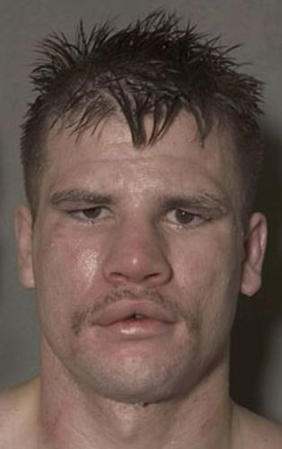 Boxers before and after a fight (12 pics)