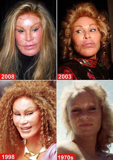 Jocelyn Wildenstein (19 pics)