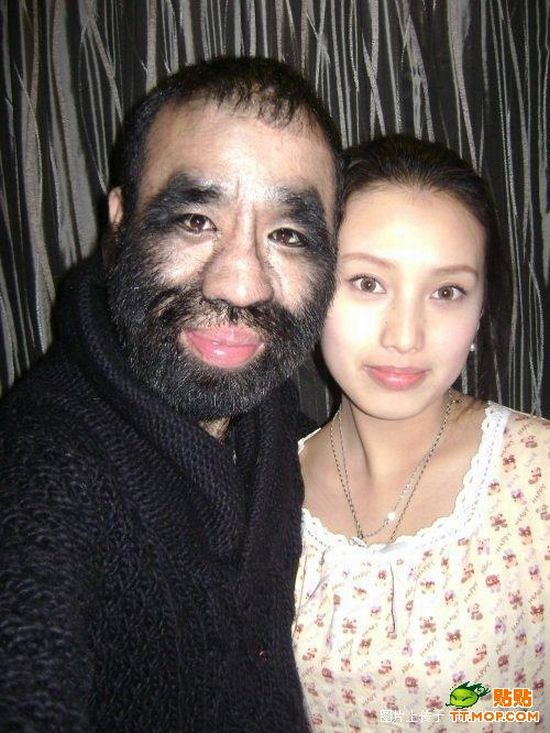 World's hairiest man and his girlfriend (11 pics)