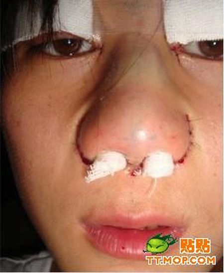 Before And After Cosmetic Surgery (18 pics)