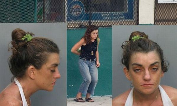 What Too Much Drugs Can Do To You (56 pics)