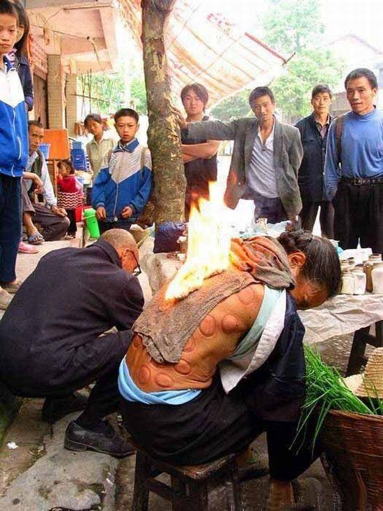 Street Medicine In China (7 pics)
