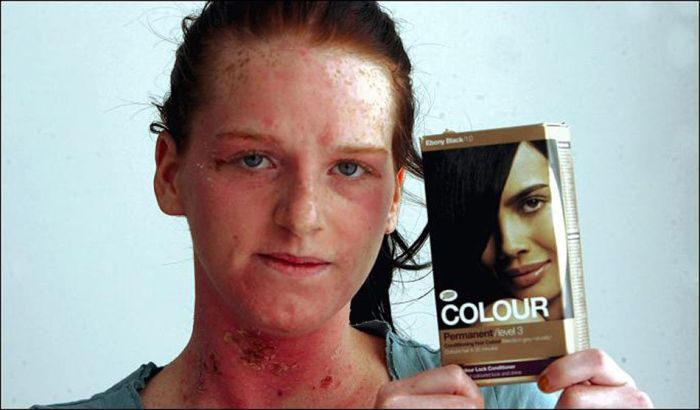 Hair Dye That Caused an Allergic Reaction (6 pics)