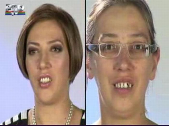 Romanian TV Show. Before and After Plastic Surgery (31 pics)