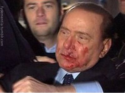 The Truth About Attack on Berlusconi (5 pics)
