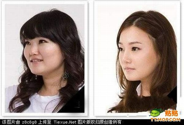 After a Plastic Surgeon (9 pics)
