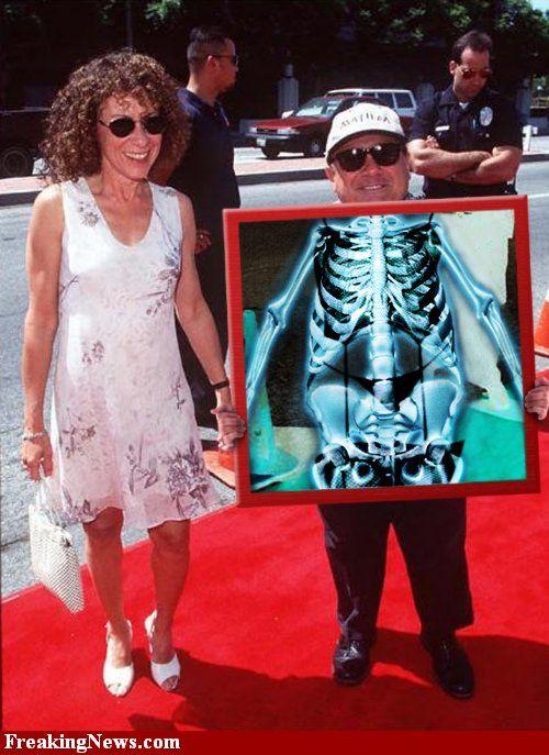 Celebrities Under X-Rays (29 pics)