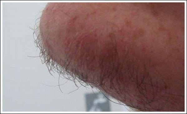 Lighter Shave (20 pics)