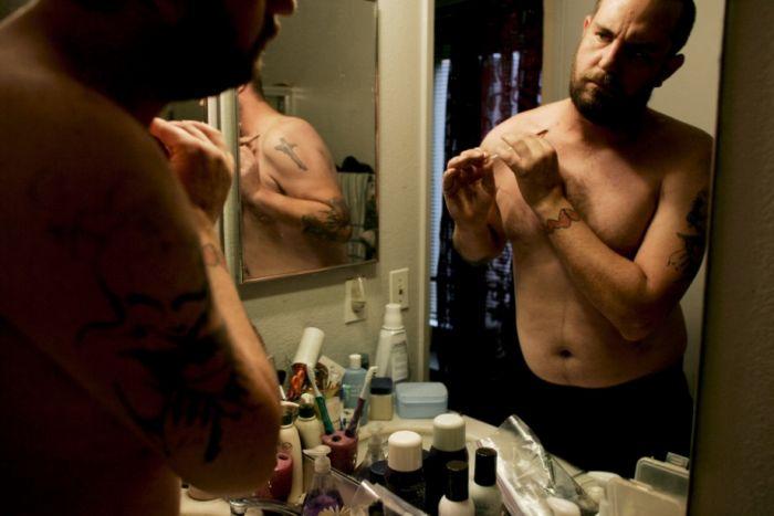 Black Tar Heroin Users (35 pics)
