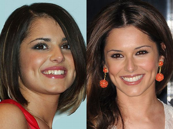 Famous Smiles. Before and After (10 pics)