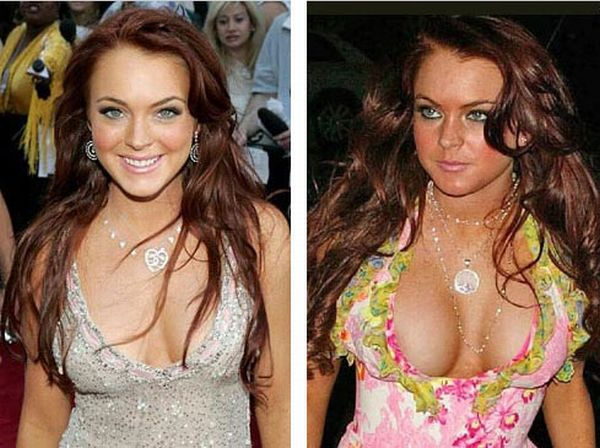 celebrity before and after boob job