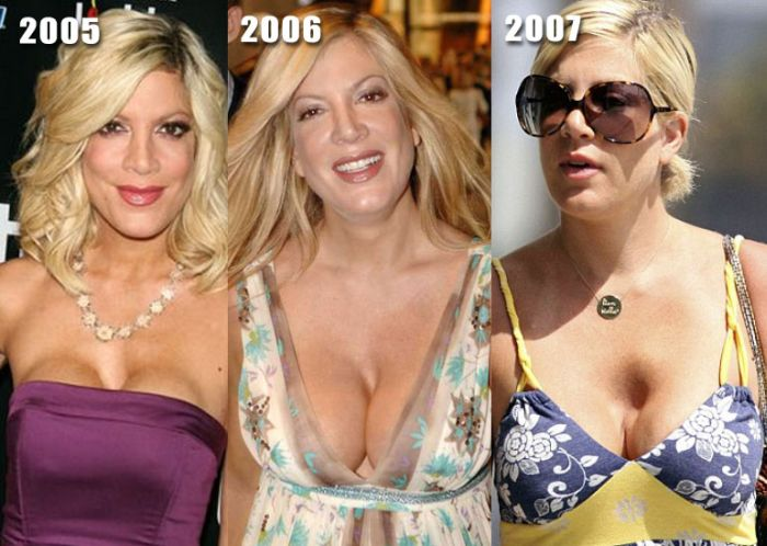 celebrity breast jobs jpg 1200x900