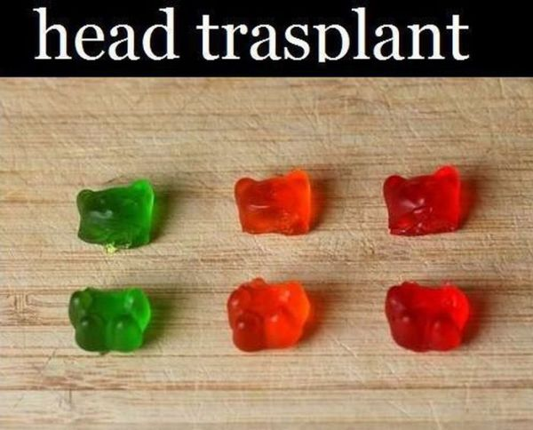 Gummy Bears Surgery (12 pics)