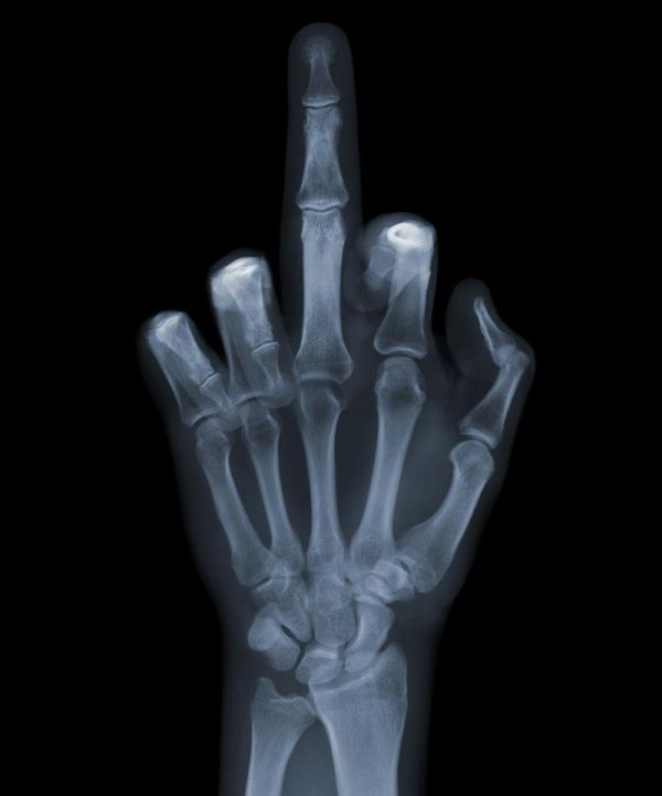 X-Ray Pictures (15 pics)