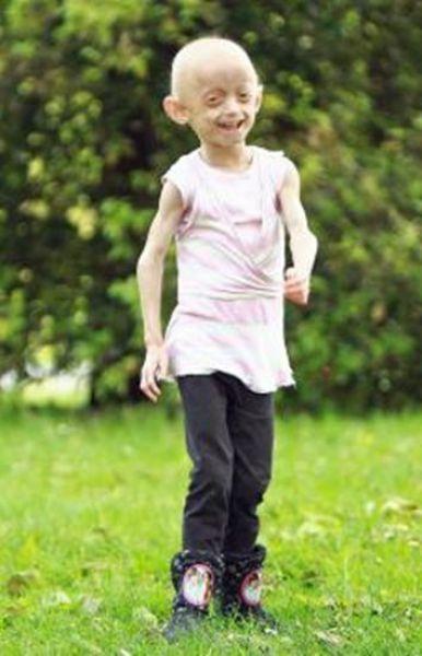 UK girl Ashanti Elliott-Smith Ages 8 Times Faster (19 pics)