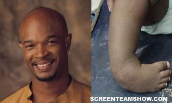 Celebrities with Deformities  (17 pics)