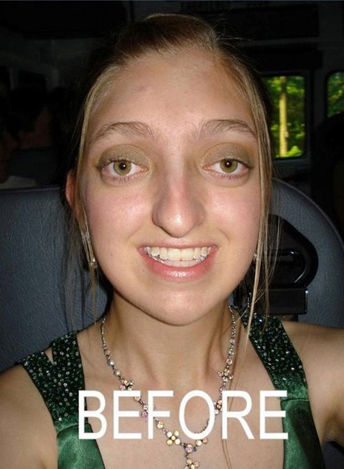 Plastic Surgery Always Helps (2 pics)