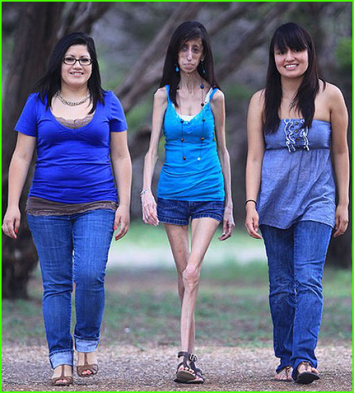 The Story of 21-year-old Lizzie Velasquez (17 pics)