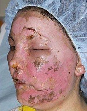 Davinia Turrell's New Face (4 pics)