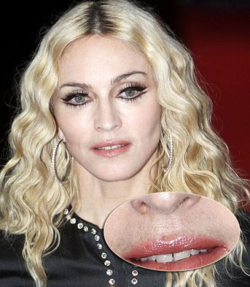 Celebrities Are Not Perfect (31 pics)