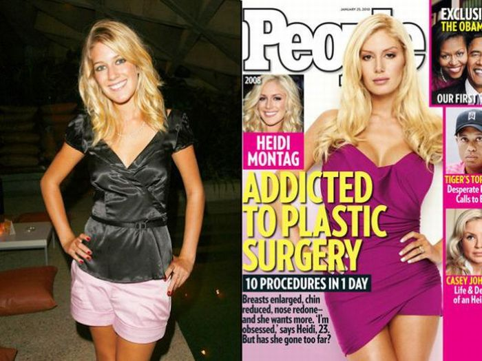 heidi montag surgery before after. Heidi Montag