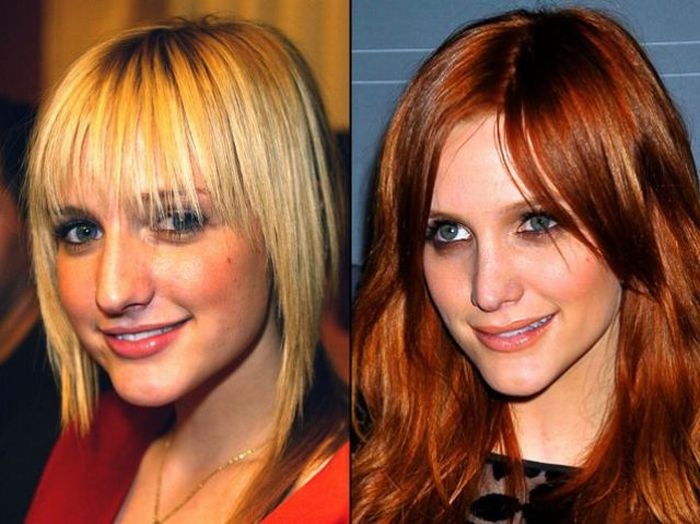 Celebrity Plastic Surgery Before And After - The Celebrity ...