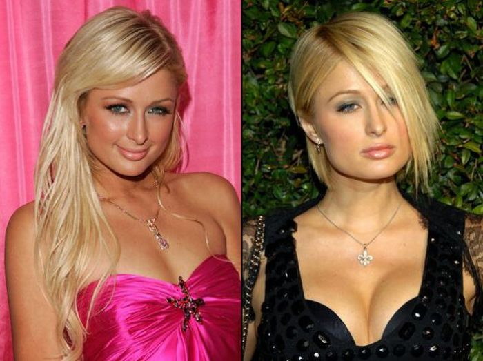 E Breast Implants Before And After Celebrities Before and...