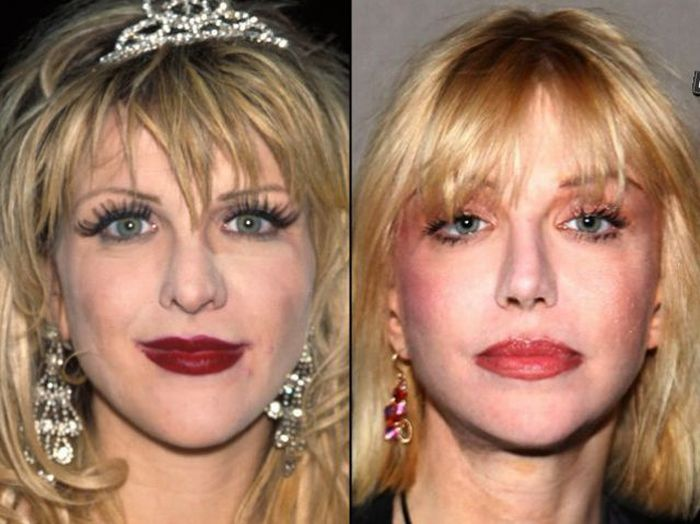 Celebrities Before And After A Plastic Surgery 21 Pics