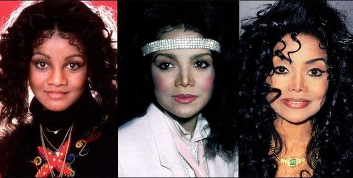 Celebrities Before and After a Plastic Surgery (21 pics)