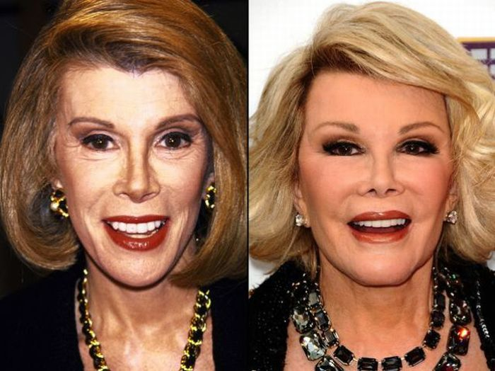 110 Best Celebrity Face-Lift Before And After images | Bad ...