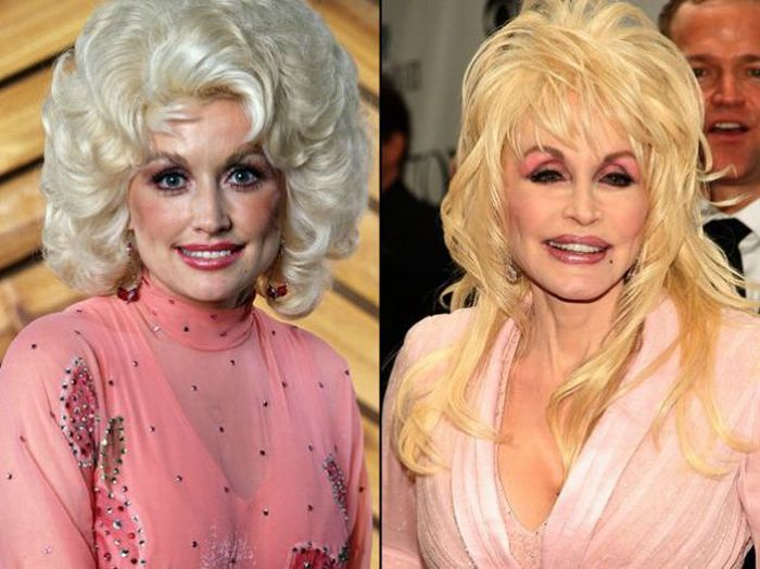 Celebrity Plastic Surgeries Before and After