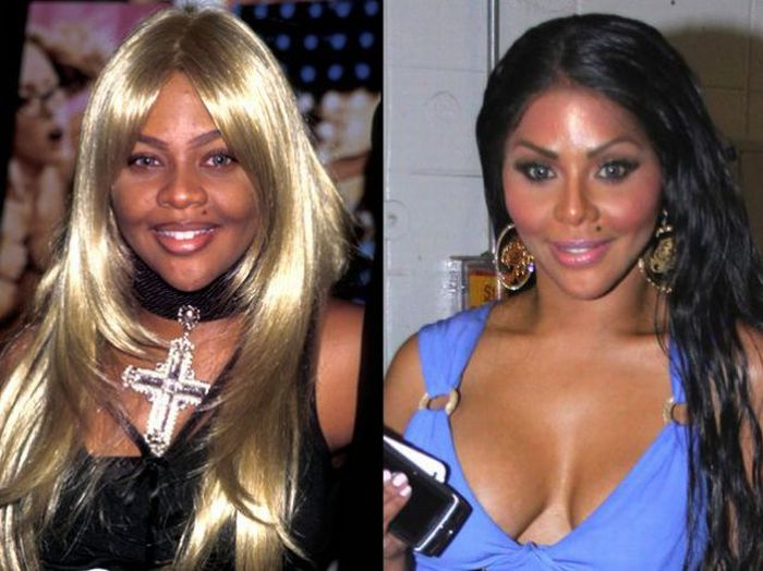 Plastic Surgery Gone Wrong: 29 Worst Celebrity Before And ...