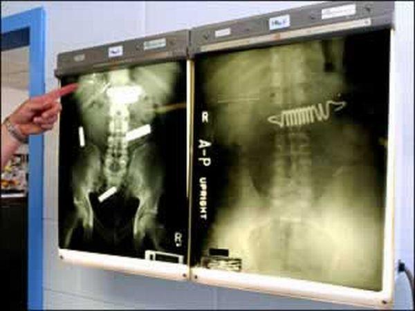 The Weirdest X-Rays Ever (20 pics)